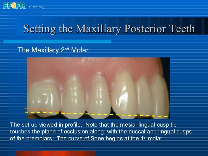 <ul><li>The Maxillary 2 nd  Molar </li></ul>Setting the Maxillary Posterior Teeth The set up viewed in profile.  Note that...