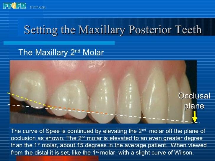 <ul><li>The Maxillary 2 nd  Molar </li></ul>Setting the Maxillary Posterior Teeth The curve of Spee is continued by elevat...