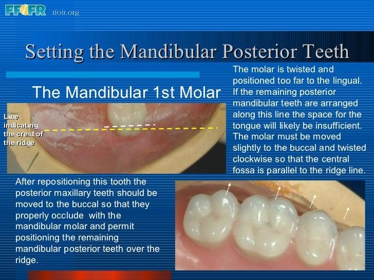<ul><li>The Mandibular 1st Molar </li></ul>Setting the Mandibular Posterior Teeth The molar is twisted and positioned too ...