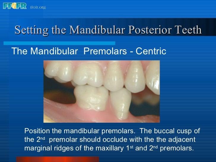 <ul><li>The Mandibular  Premolars - Centric </li></ul>Setting the Mandibular Posterior Teeth Position the mandibular premo...