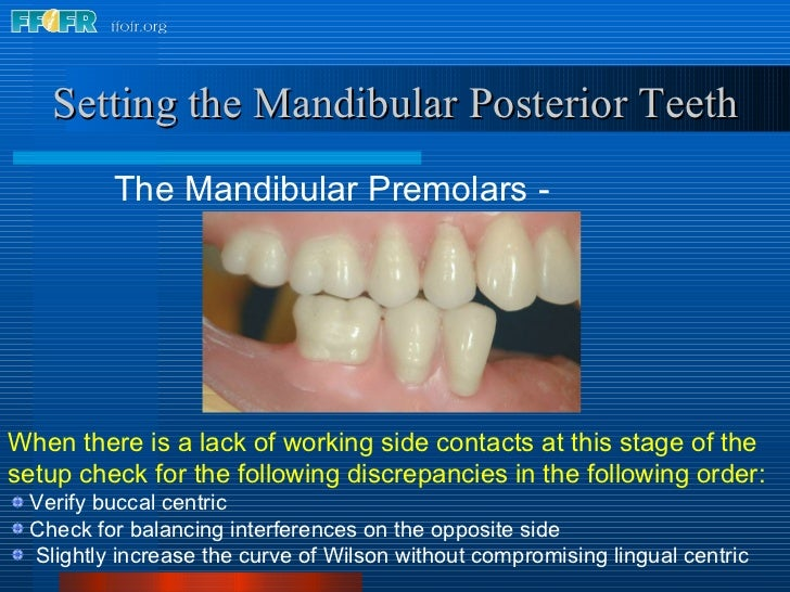 <ul><li>The Mandibular Premolars - Working </li></ul>Setting the Mandibular Posterior Teeth <ul><li>When there is a lack o...
