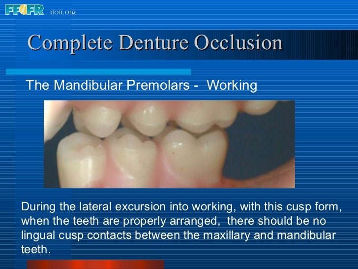 <ul><li>The Mandibular Premolars -  Working </li></ul>Complete Denture Occlusion During the lateral excursion into working...