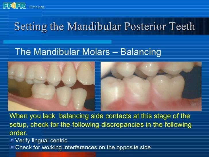 <ul><li>The Mandibular Molars – Balancing </li></ul>Setting the Mandibular Posterior Teeth <ul><li>When you lack  balancin...