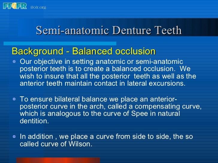 <ul><li>Background - Balanced occlusion </li></ul><ul><li>Our objective in setting anatomic or semi-anatomic posterior tee...