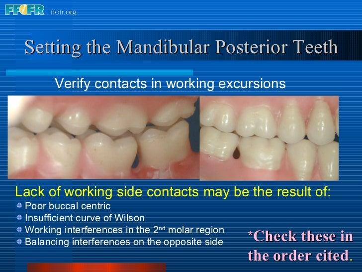 <ul><li>Verify contacts in working excursions </li></ul>Setting the Mandibular Posterior Teeth <ul><li>Lack of working sid...