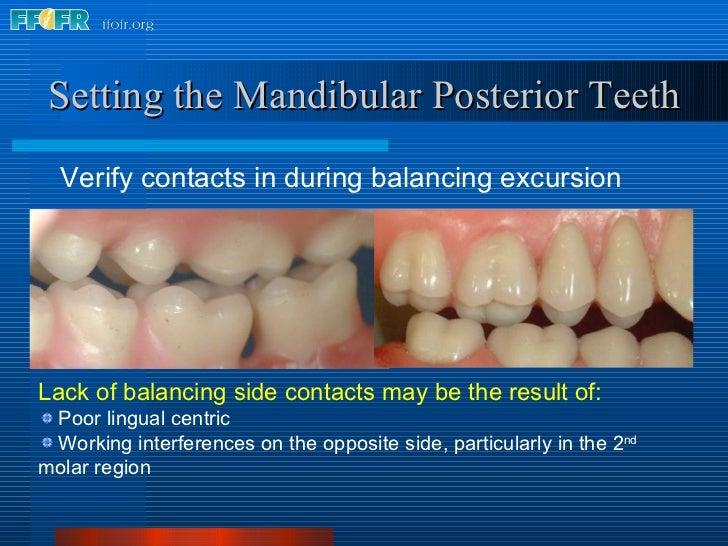 <ul><li>Verify contacts in during balancing excursion </li></ul>Setting the Mandibular Posterior Teeth <ul><li>Lack of bal...