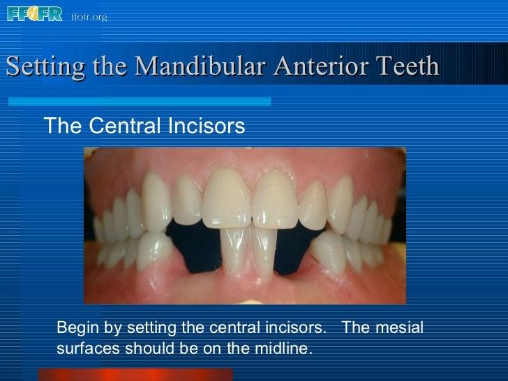 <ul><li>The Central Incisors </li></ul>Setting the Mandibular Anterior Teeth Begin by setting the central incisors.  The m...