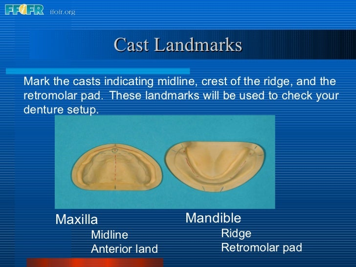 Mark the casts indicating midline, crest of the ridge, and the retromolar pad .  These landmarks will be used to check you...