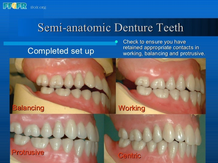 Semi-anatomic Denture Teeth <ul><li>Check to ensure you have retained appropriate contacts in working, balancing and   pro...