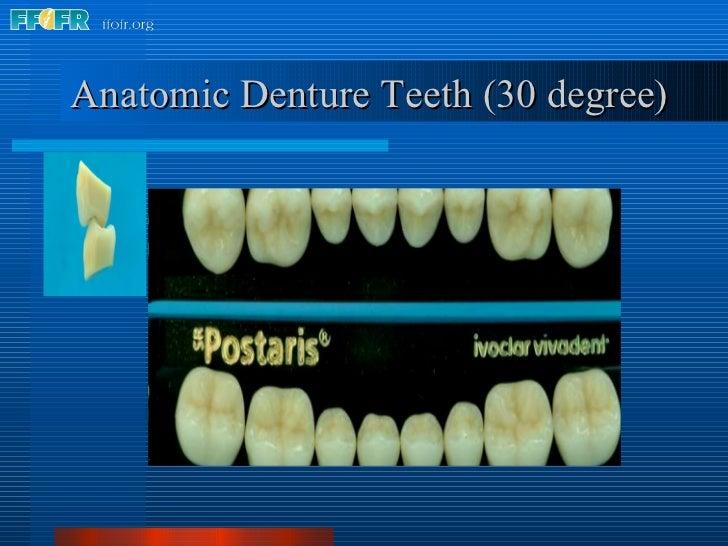Anatomic Denture Teeth (30 degree)