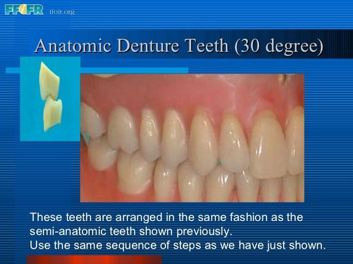 Anatomic Denture Teeth (30 degree) These teeth are arranged in the same fashion as the semi-anatomic teeth shown previousl...