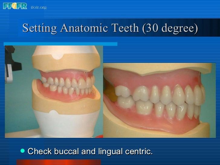 Setting Anatomic Teeth (30 degree) <ul><li>Check buccal and lingual centric. </li></ul>