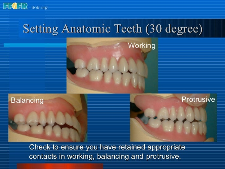 Setting Anatomic Teeth (30 degree) <ul><li>Check to ensure you have retained appropriate contacts in working, balancing an...