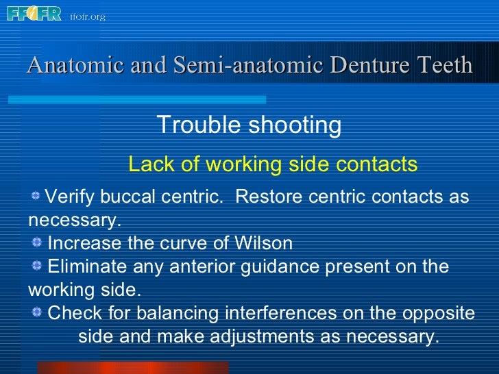 <ul><li>Trouble shooting </li></ul>Anatomic and Semi-anatomic Denture Teeth <ul><li>Lack of working side contacts </li></u...