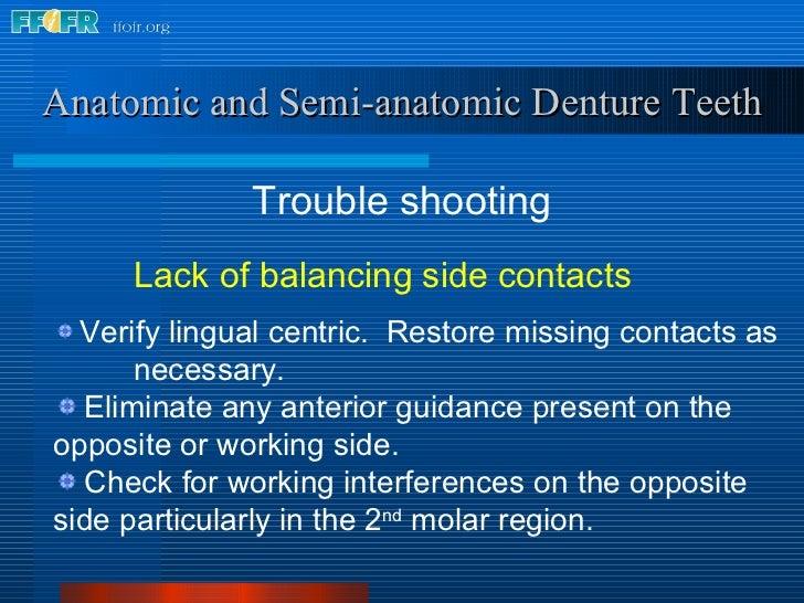 <ul><li>Trouble shooting </li></ul>Anatomic and Semi-anatomic Denture Teeth <ul><ul><ul><li>Lack of balancing side contact...