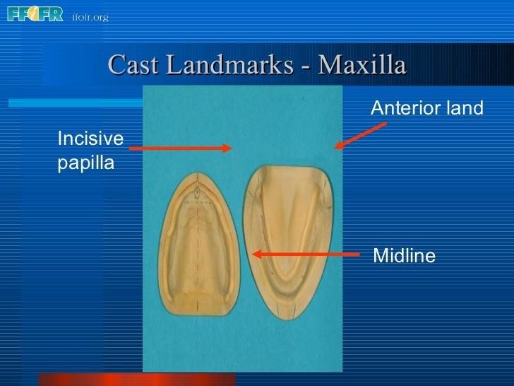 Anterior land Cast Landmarks - Maxilla Midline Incisive papilla