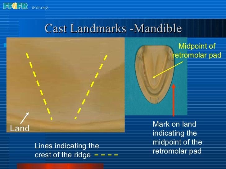 Lines indicating the crest of the ridge  Cast Landmarks -Mandible Midpoint of retromolar pad Land Mark on land indicating ...
