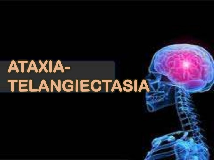 Ataxia-Telangiectasia:A.   Definition (other name)B.   Signs and SymptomsC.   Dental CorrelationD.   Classification