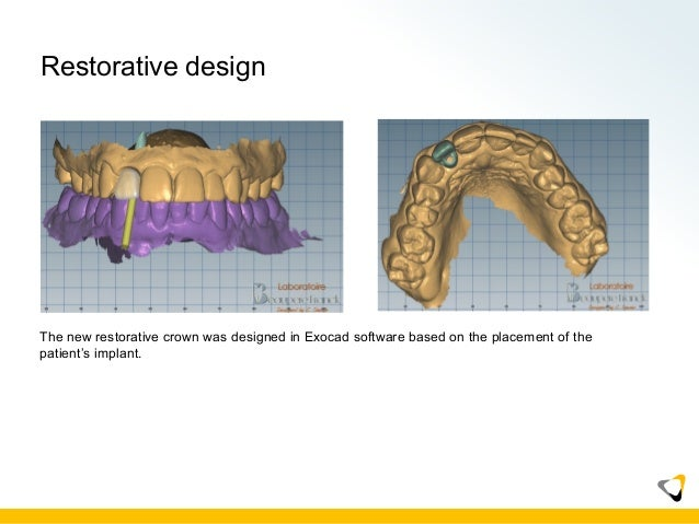 CS3600 Implant Case Presentation