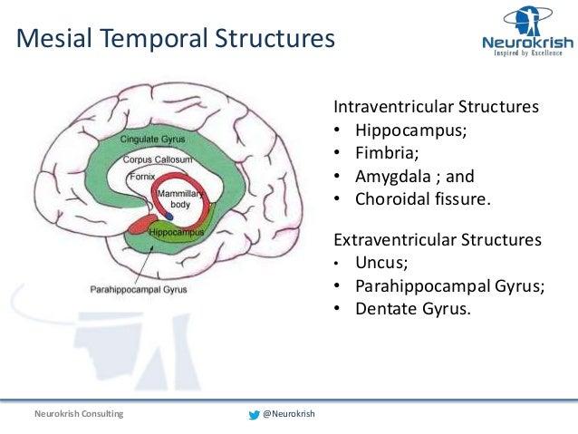 Mesial Temporal Lobe Anatomy