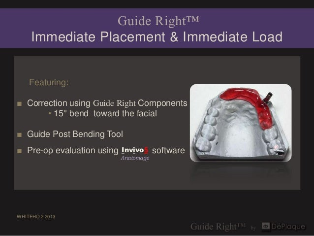 Guide Right™     Immediate Placement & Immediate Load    Featuring:■ Correction using Guide Right Components       • 15° b...