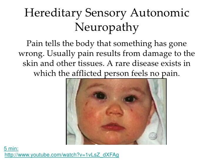 Neuropathy, Hereditary Sensory and Autonomic, Type V ...  Hereditary Sensory And Autonomic Neuropathy