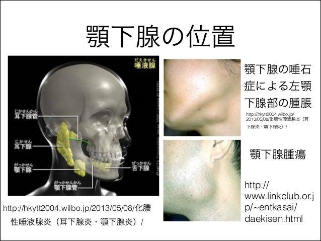 頚部の腫瘤の鑑別診断