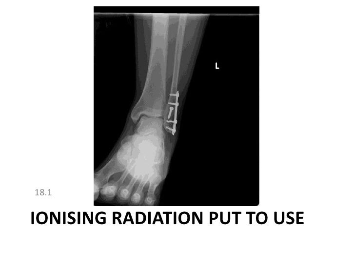 18.1<br />Ionising radiation put to use<br />