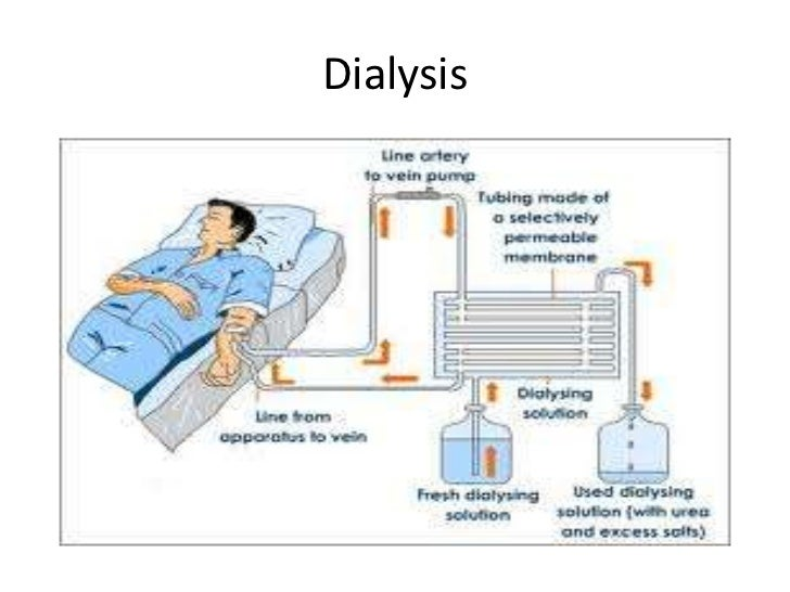 Dialysis: All you need to know