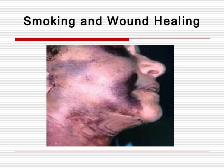 Smoking and Wound Healing