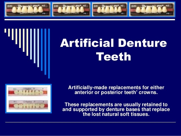 Artificial Denture Teeth Artificially-made replacements for either anterior or posterior teeth' crowns. These replacements...