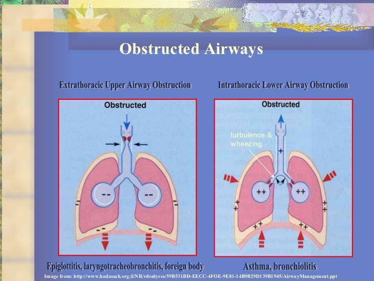 18 Basics Of Pediatric Airway Anatomy Physiology And Management
