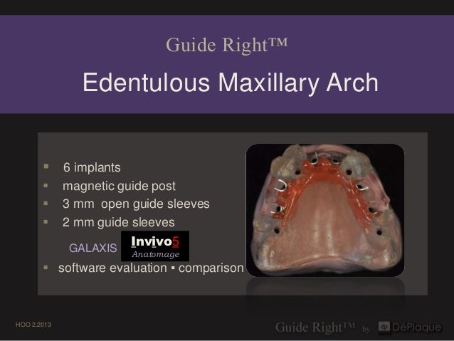 Guide Right™               Edentulous Maxillary Arch        6 implants            magnetic guide post            3 mm o...