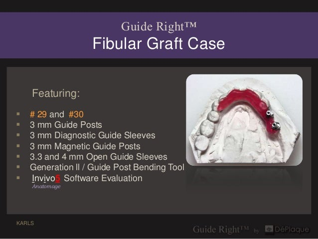 Guide Right™                   Fibular Graft Case    Featuring:   # 29 and #30   3 mm Guide Posts   3 mm Diagnostic Gui...