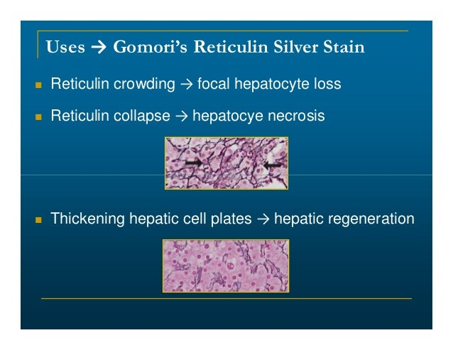 Gomori Reticular Fiber Stain Research 04 2016 Powerpoint