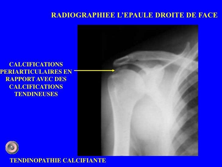 RADIOGRAPHIEE L'EPAULE DROITE DE FACE  CALCIFICATIONSPERIARTICULAIRES EN RAPPORT AVEC DES  CALCIFICATIONS    TENDINEUSES  ...