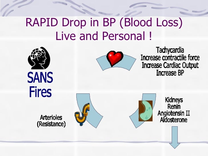 RAPID Drop in BP (Blood Loss) Live and Personal ! SANS Fires Arterioles (Resistance) Kidneys Renin Angiotensin II Aldoster...