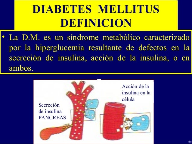 Diabetes Generalidades