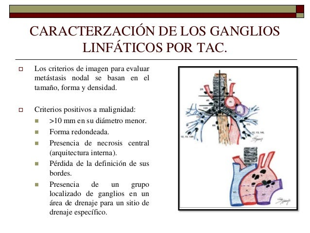 Anatomia y Embriologia del Sistema Respiratorio