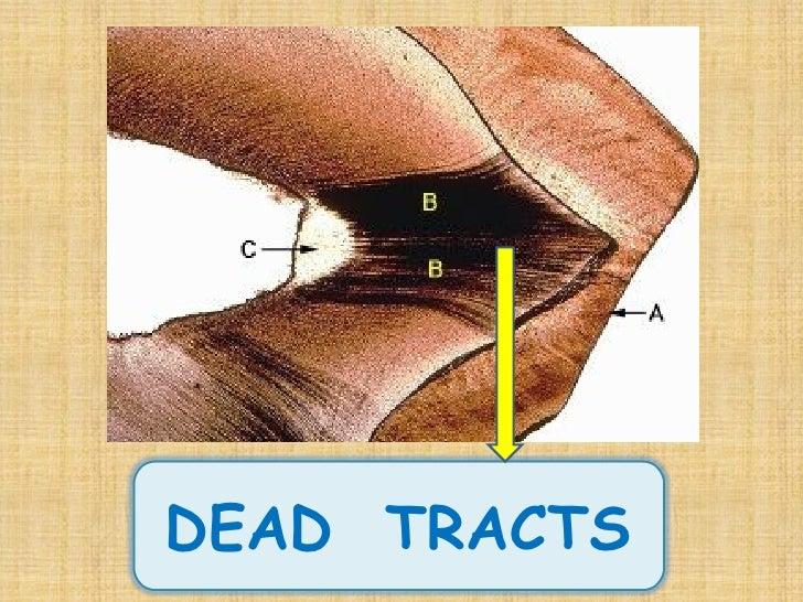 1 Enamel Dentin Pulp