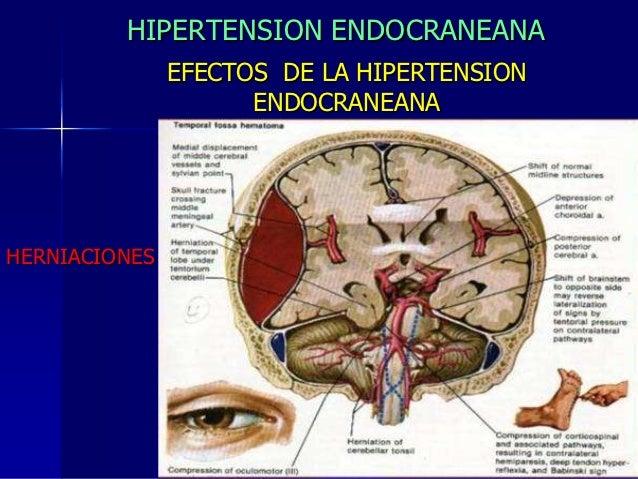 1 hipertension endocraneana[1]
