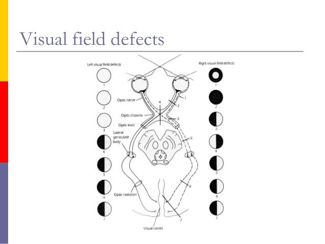 Introduction to Eye
