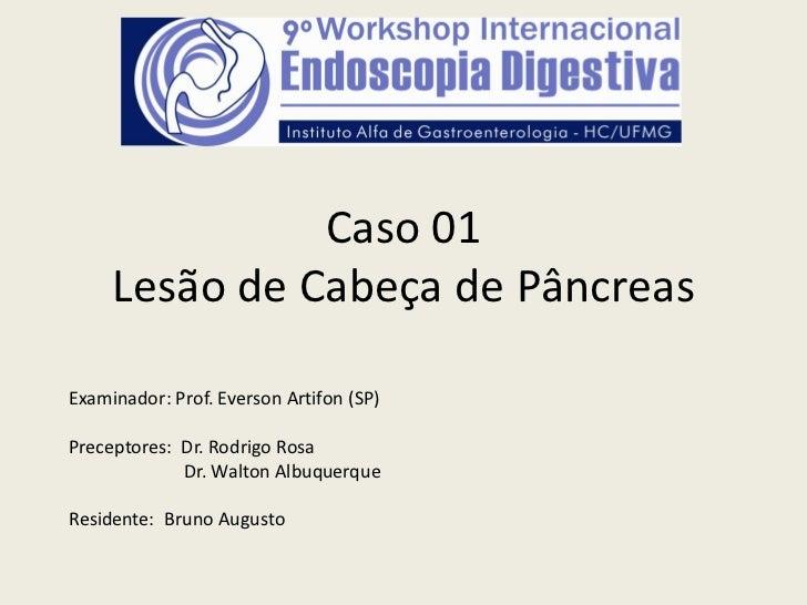 Caso 01     Lesão de Cabeça de PâncreasExaminador: Prof. Everson Artifon (SP)Preceptores: Dr. Rodrigo Rosa             Dr....