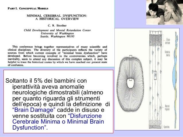 Soltanto il 5% dei bambini con iperattività aveva anomalie neurologiche dimostrabili (almeno per quanto riguarda gli strum...