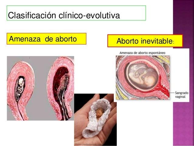 Duele el pecho duele la parte inferior del vientre y los riñones