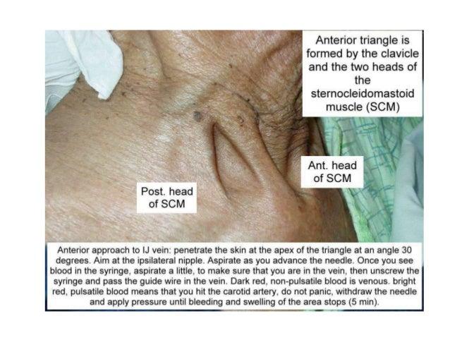 Immediately Complications of Insertion CVL • Hemothorax. • Pneumothorax (most common). • Bleeding • Arterial puncture. • V...