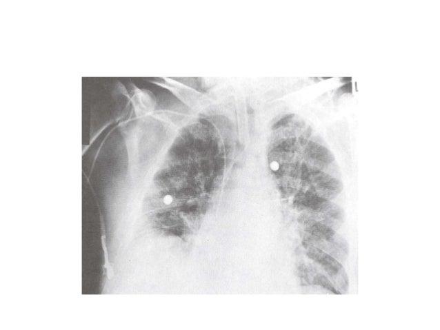 Factors Affecting CVP •Cardiac Function •Blood Volume •Capacitance of vessel •Intrathoracic Pressure •Intraperitoneal pres...