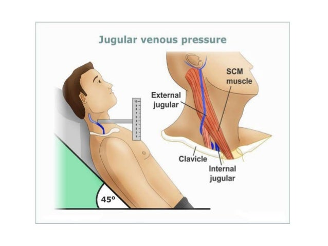 • Turn off the flow from the fluid bag and open the three-way tap from the manometer to the patient