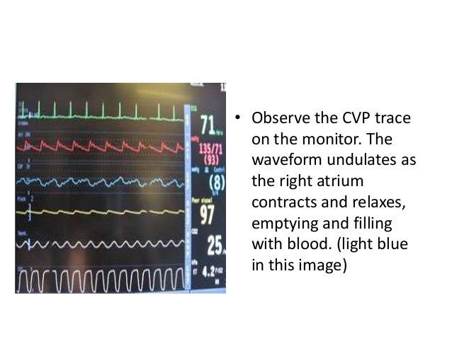 'y' descent • Early ventricular filling, opening of TV • Early Diastole • Attentuation of y descent: TS, Tachycardia, RVF,...
