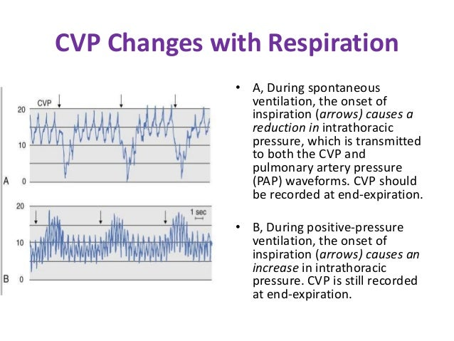 1 Monitoring of Central Venous Pressure & Its Techniques